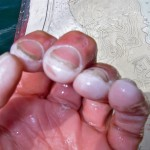 The author's hands: pruned, pale, and perpetually pickled in salt brine